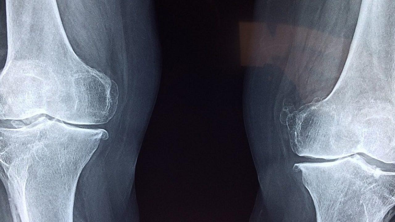 displazia cotului medicament medicamente utilizate pentru durerile articulare
