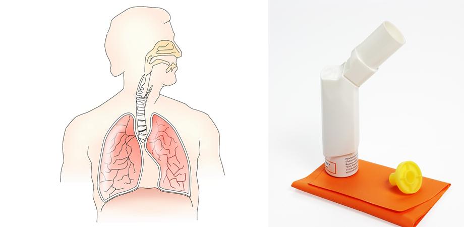 riscurile covid pentru astm