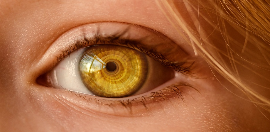 Ce reprezinta heterocromia?