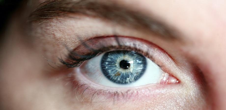 Cum se trateaza irita oculara?