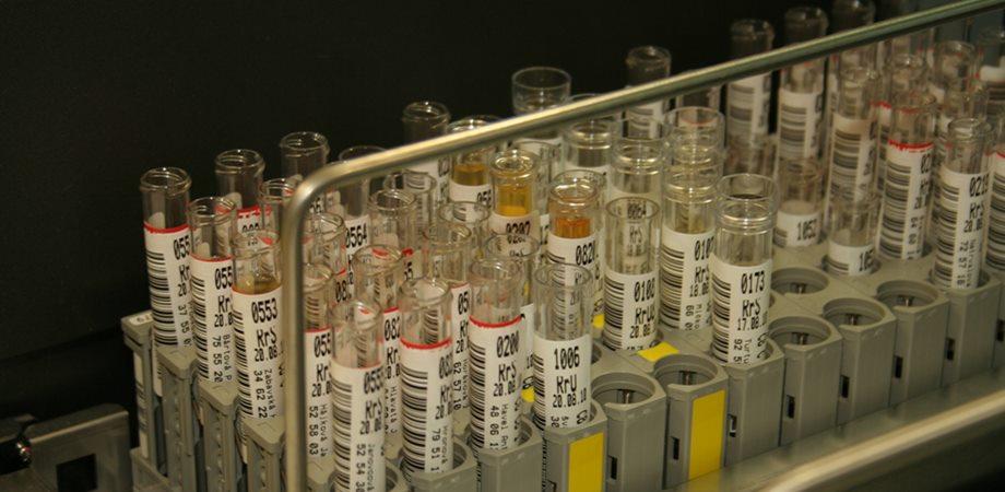 examenul de urina