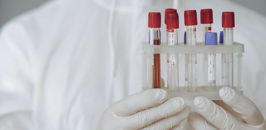 testele hepatice