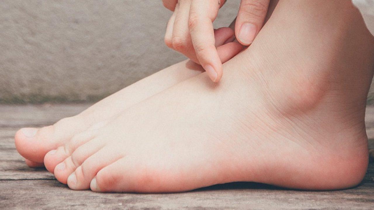 cum se repară durerile de picioare durere și arsură la nivelul picioarelor și picioarelor inferioare