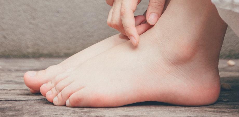 dureri de gambă și călcâi umflate