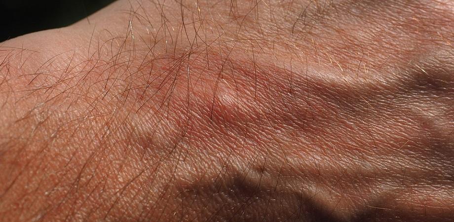 Dermatofitoza
