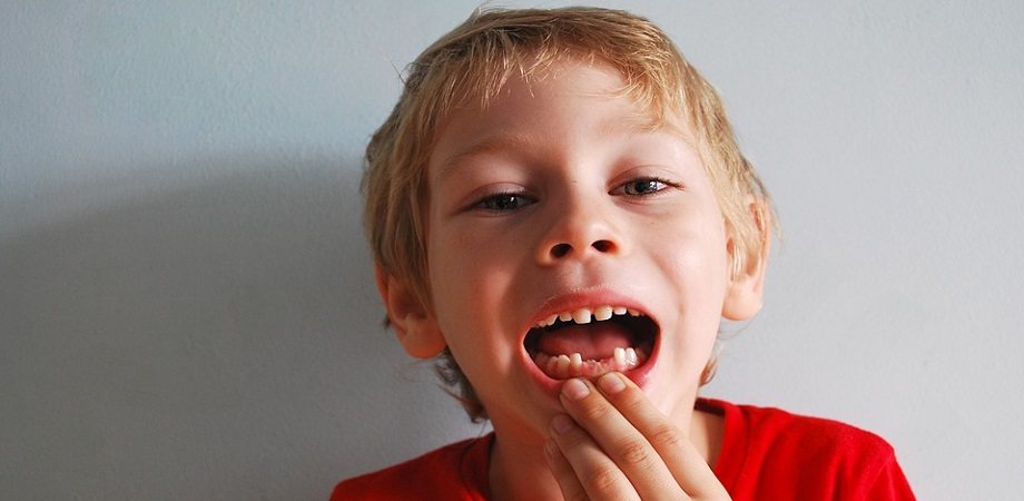 La ce varsta incepe schimbarea dintilor de lapte?