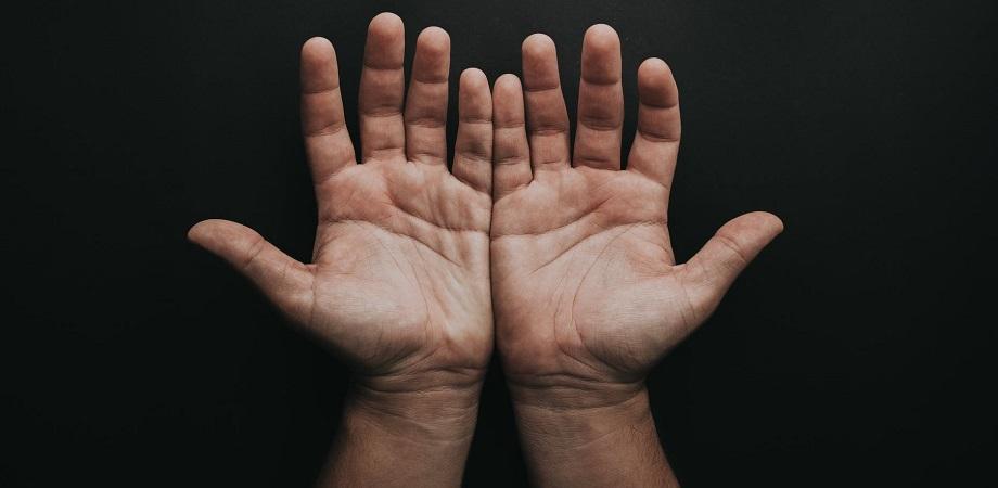 Cum se manifesta distrofia simpatica reflexa?