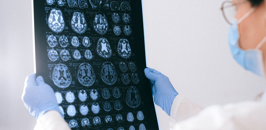 efectele unui accident vascular cerebral