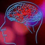 Tromboliza in accidentul vascular cerebral – importanta in recuperare