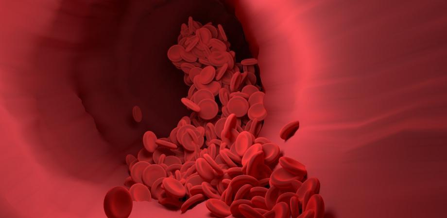 ateroscleroza si arterioscleroza